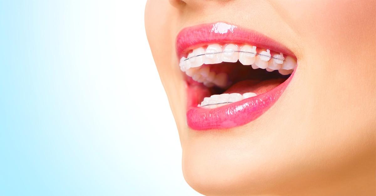 Conheça e entenda o principal diferencial da Ortodontia Estética