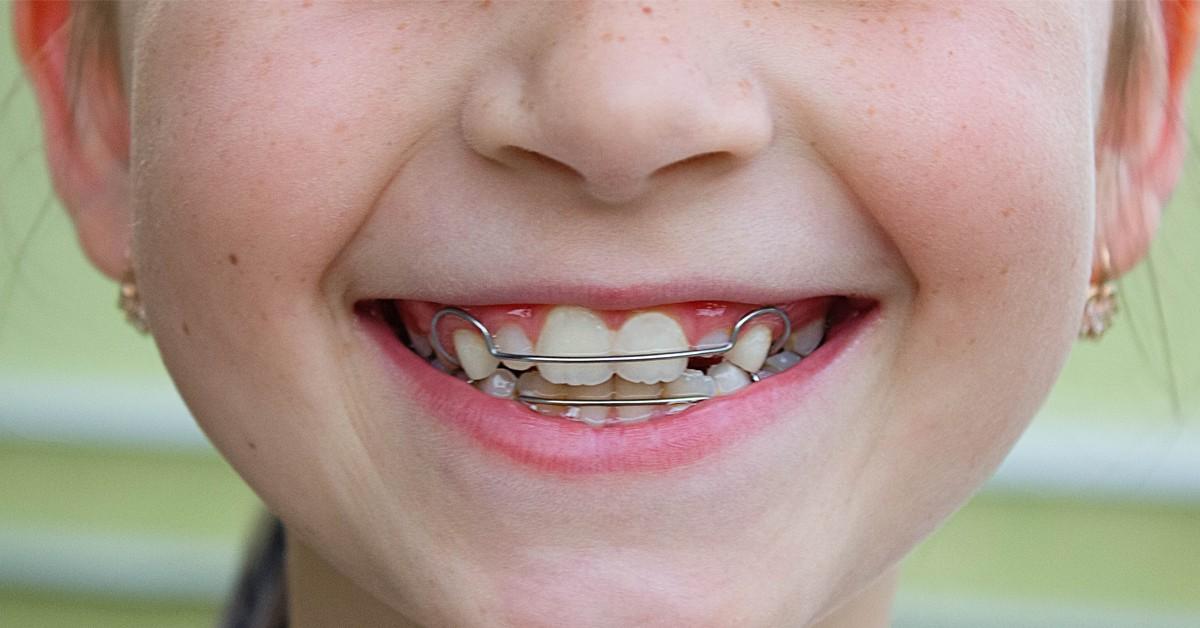 Saiba o papel do aparelho móvel no alinhamento do seu sorriso