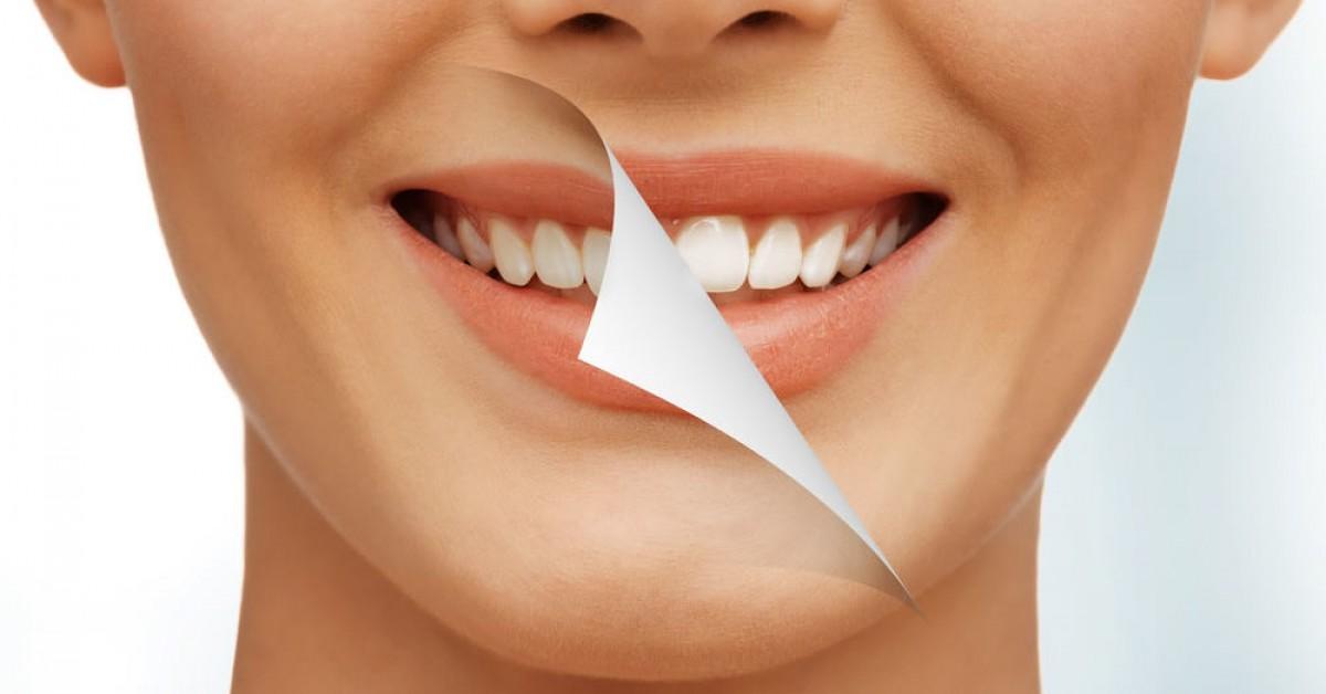 Mitos e Verdades sobre Clareamento Dental