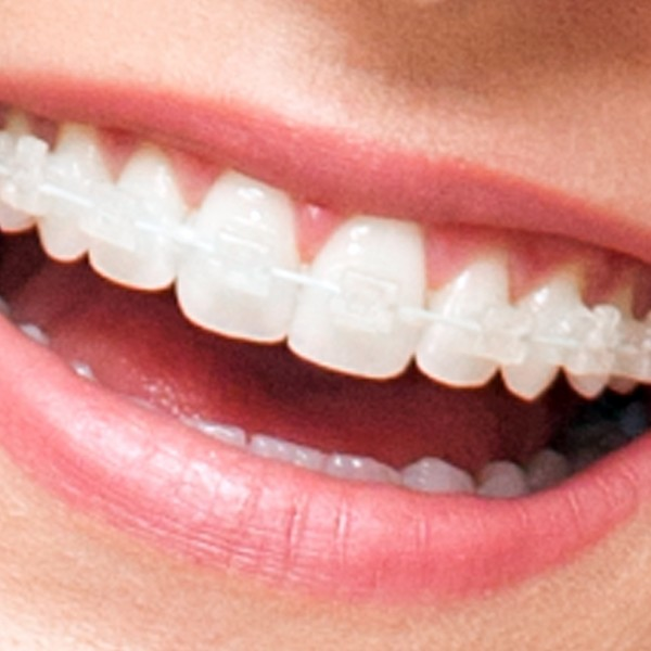 Ortodontia Convencional X Ortodontia Contemporânea Estética