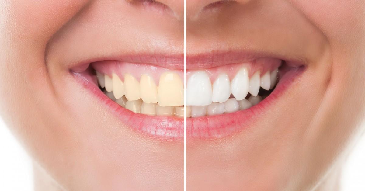Dentes Brancos: Lentes de Contato ou Clareamento?