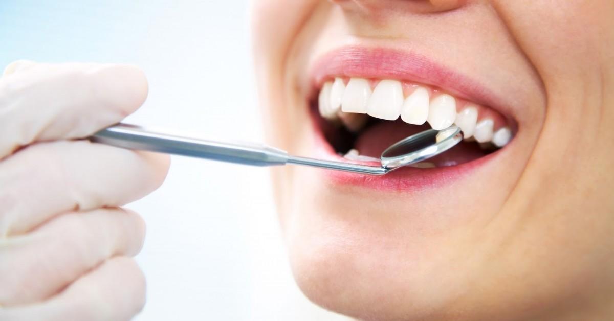Dentística Restauradora – Restauração de Dentes afetados por traumas, devolvendo o sorriso perfeito e funcional ao paciente.